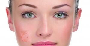 Lekelere Etkili Dokunuş Dermaceutic Mela Cream
